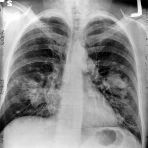 Lung x-ray with cancer