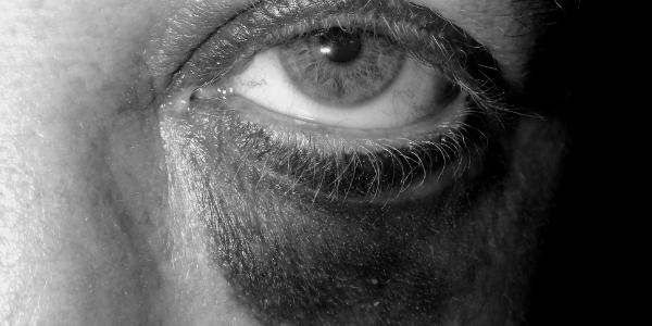 Black-eye2